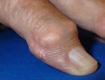 Gicht – Punktlandung ohne Nadel