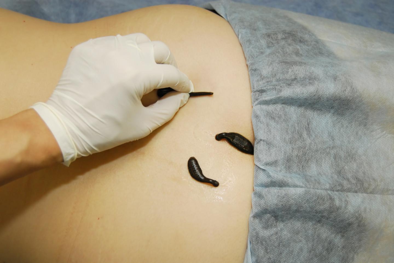 Arztpraxis Prof. Sprott, Zürich, Praxis für Rheuma & Schmerz, Blutegeltherapie bei Rückenschmerzen