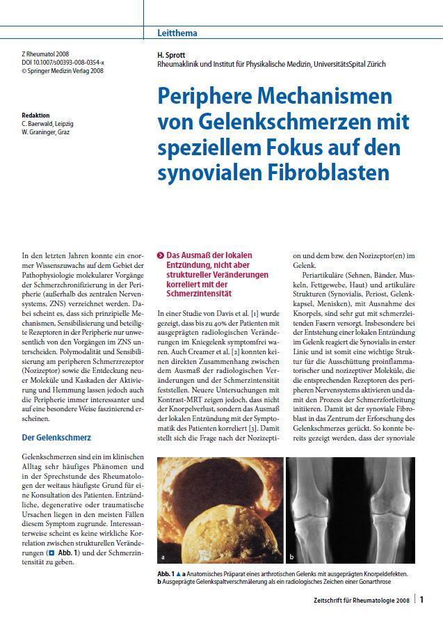 Arztpraxis Prof. Sprott, Zürich, Praxis für Rheuma & Schmerz, Gelenkschmerzen