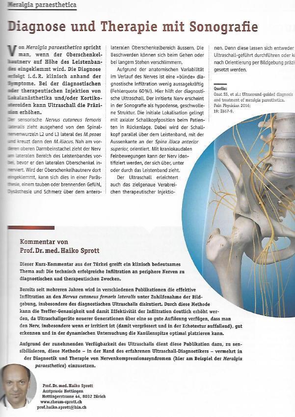 Arztpraxis Prof. Sprott, Zürich, Praxis für Rheuma & Schmerz, Publikation über Ultraschall