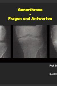 Arztpraxis Prof. Sprott, Zürich, Praxis für Rheuma & Schmerz, Gonarthrose