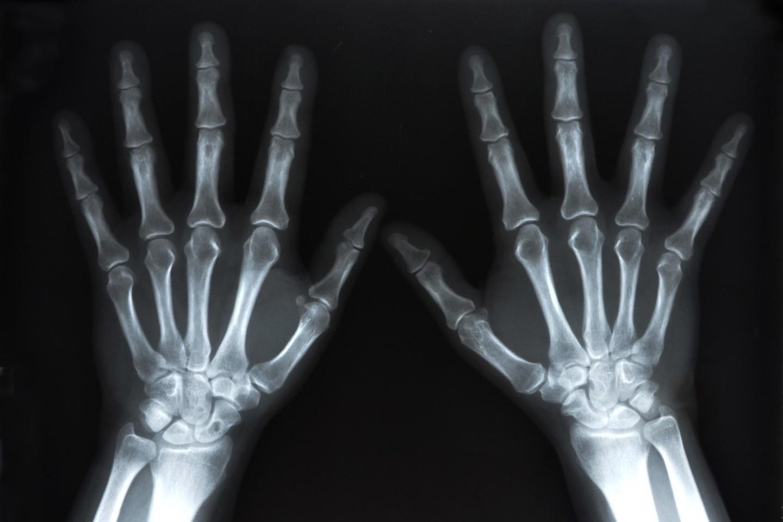 Arztpraxis Prof. Sprott, Zürich, Praxis für Rheuma & Schmerz, Digitales Röntgen