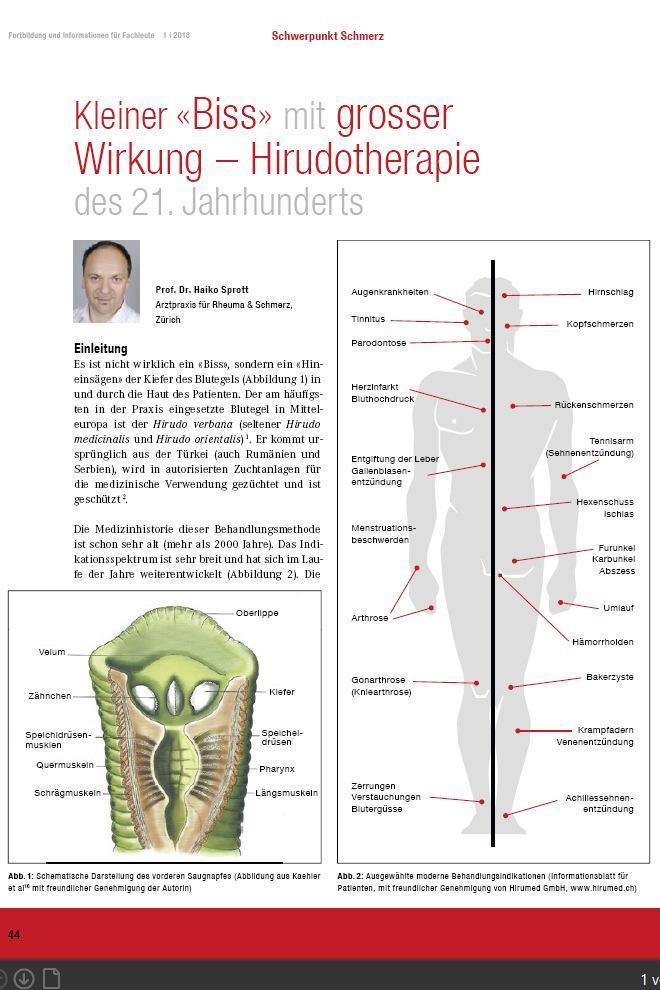 Arztpraxis Prof. Sprott, Zürich, Praxis für Rheuma & Schmerz, Blutegel