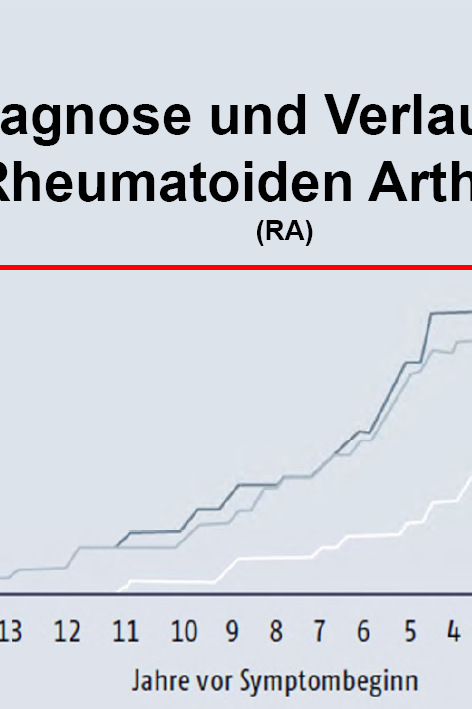 Arztpraxis Prof. Sprott, Zürich, Praxis für Rheuma & Schmerz, Rheuma